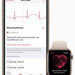 Die Apple Watch wird zum EKG Gerät