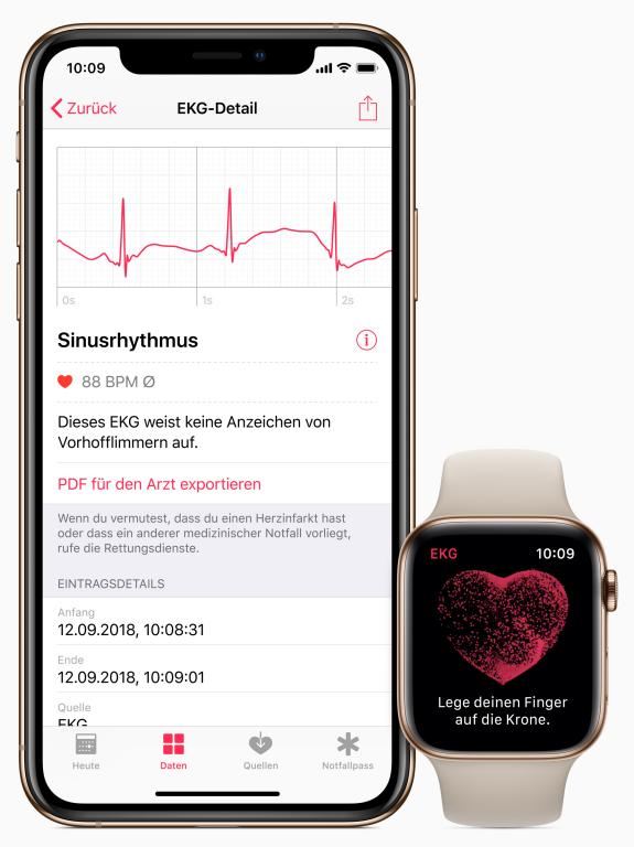 Apple Watch EKG 1